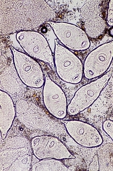 Sporocysts of [Dicrocoelium dentriticum]