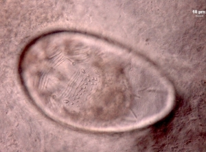 Larvae of [Sarcoptes scabiei] in the egg (dorsal view)